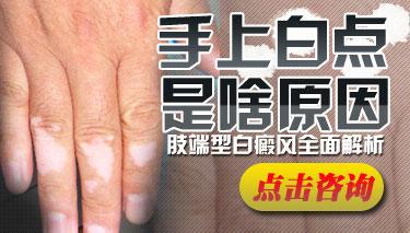 手部白癜风的危害有哪些