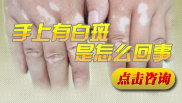手部白癜风要日常要怎么护理