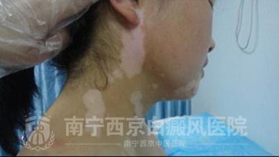 女孩下颚与颈部白斑苦缠多年,终于治好了!